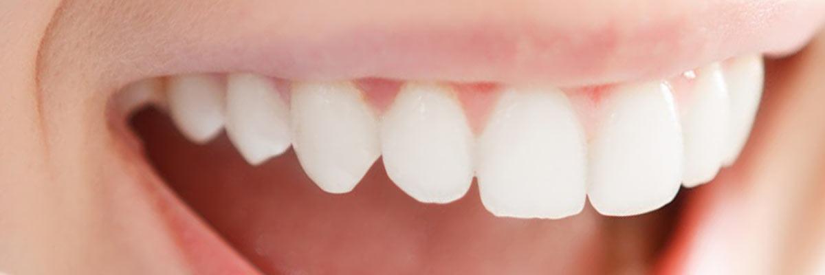 gele tanden oorzaak