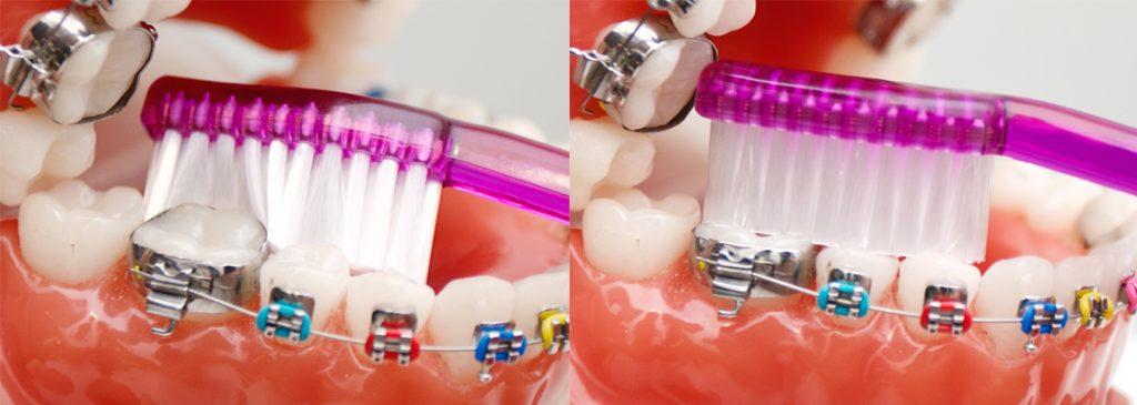 tanden-beugel-poetsen-boven