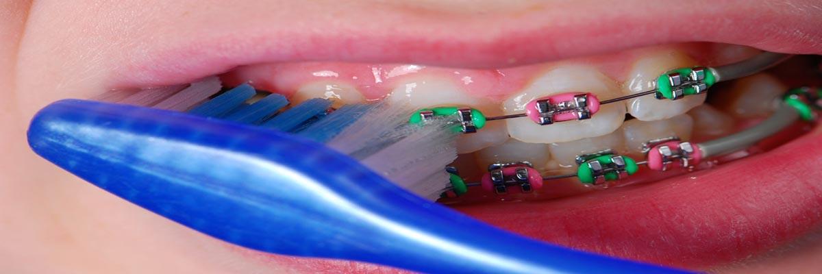 Hoe tanden poetsen met een beugel?