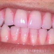 tandplakverklikker-paars