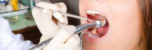 Zelf tandsteen verwijderen: tandsteen haakje gebruiken