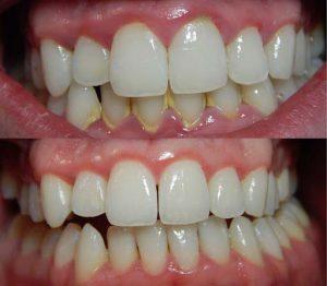 tandsteen-verwijderen-tandarts