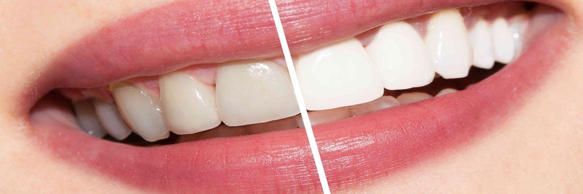 Waarom zijn mijn tanden geel?