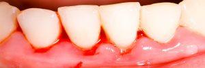 Oorzaken bloedend tandvlees