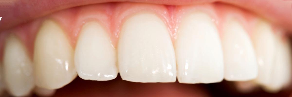 Reinigt een elektrische tandenborstel ook tussen de tanden?