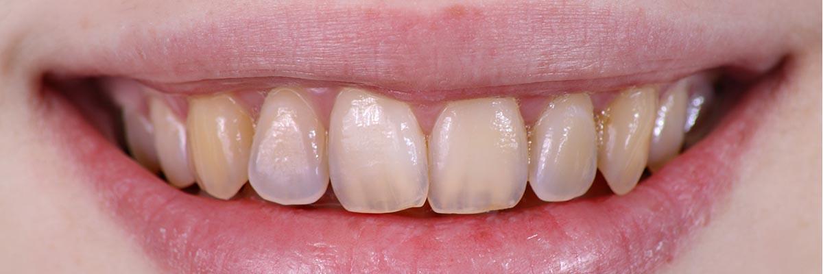 Korter worden van tanden en kiezen: het gevolg van gebitsslijtage