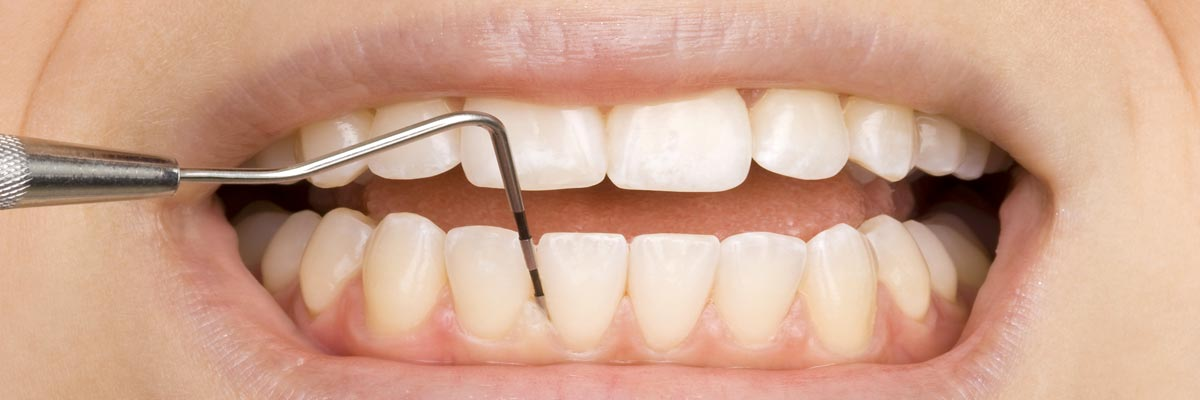 Tandvlees reinigen (parodontitis behandeling) parodontoloog