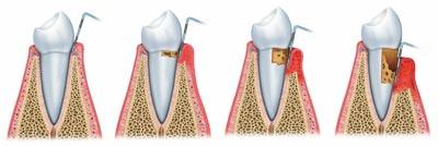 parodontitis-stadia