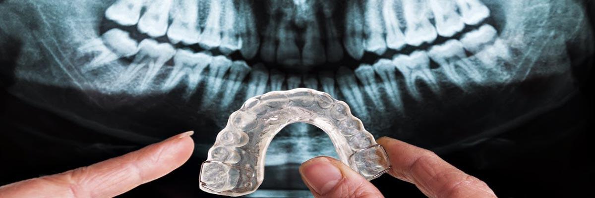 Tandenknarsen? Oorzaken en tips