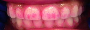Tandplakverklikker kopen