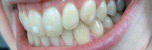 Witte vlekken op tanden: wat is dat?