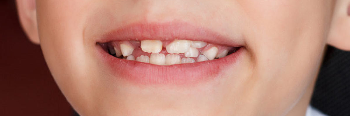 Tanden komen scheef door: oorzaak en wat aan te doen?
