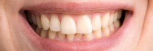 Hoe voorkomen dat je tanden geel worden?