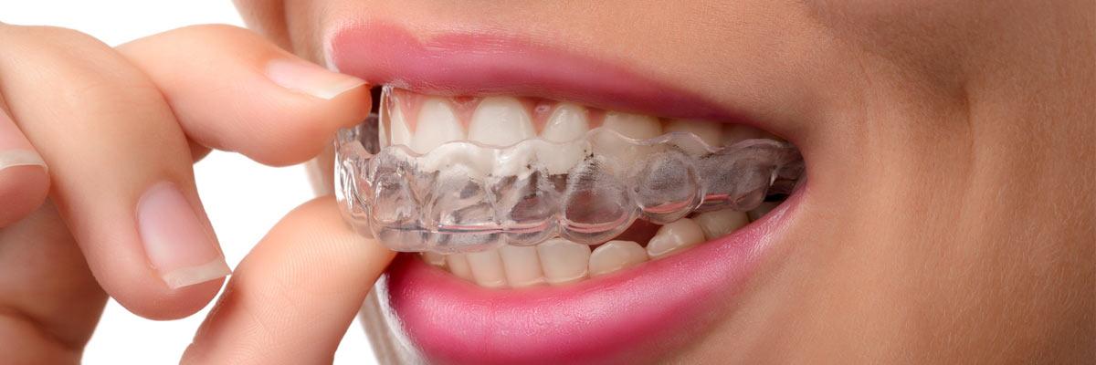 Tanden knarsen: een knarsbitje gebruiken