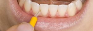 Het gebruik van ragertjes bij het reinigen van het gebit