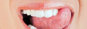 Tanden zelf thuis polijsten en zo gele tanden voorkomen
