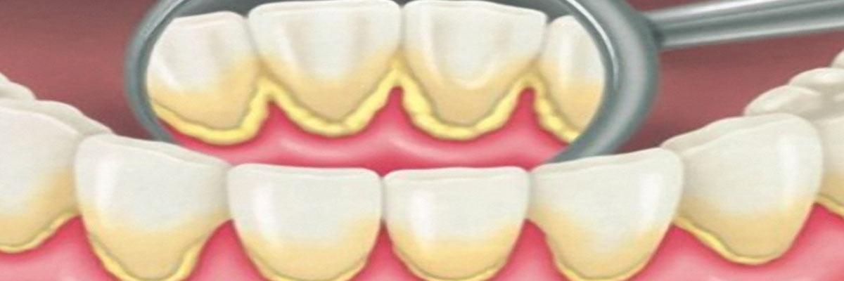 Waarom je anti tandsteen tandpasta kan gebruiken tegen tandsteen!