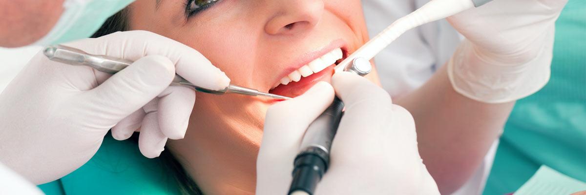 Tandsteen verwijderen bij tandarts pijnlijk?!