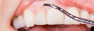 Waarom heeft de een meer last van tandsteen dan een ander?