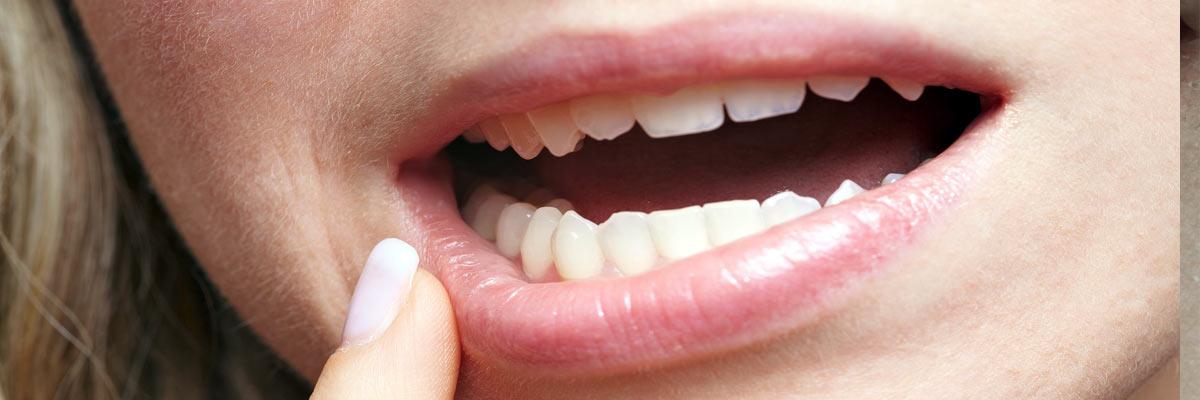 Gevoelige tanden? Wat is de oorzaak en wat kun je er tegen doen?