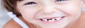 Wat je moet weten over het gebit van kinderen