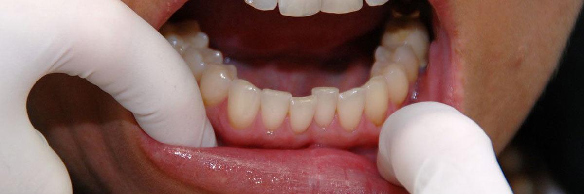 Tandvleesontsteking, wanneer naar de tandarts en speciale tandpasta gebruiken?