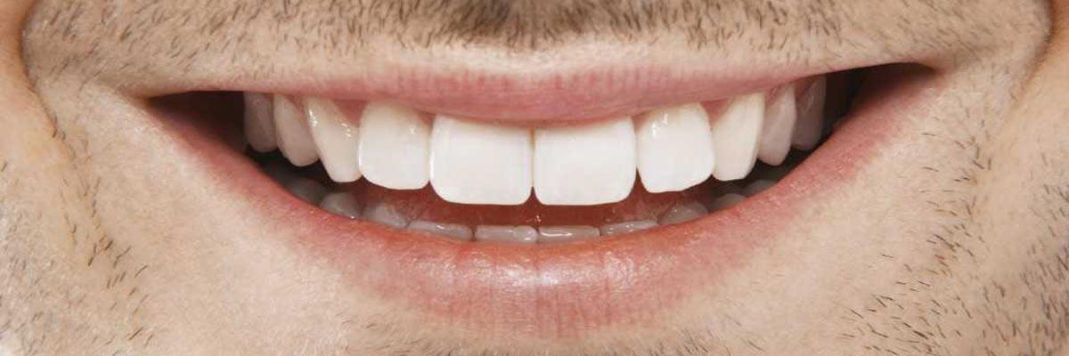 Zorgt whitening tandpasta voor wittere tanden?