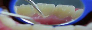 Tips voor tandplak verwijderen: poetsen, ragen en tandartshaakje voor tandsteen