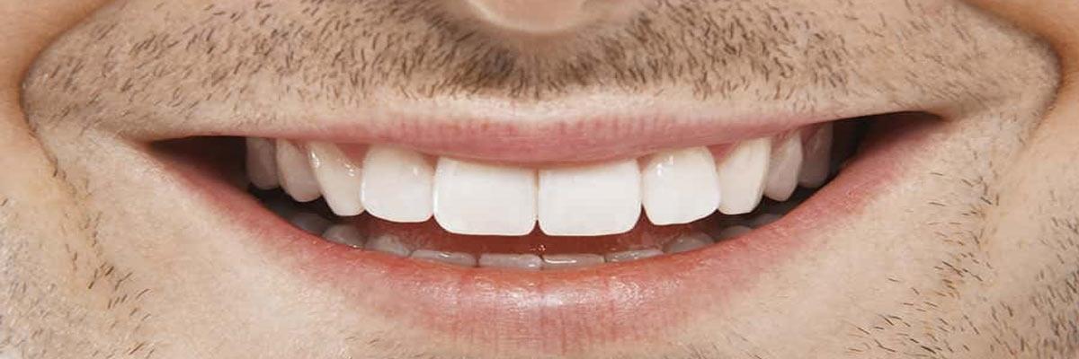 Op welke manier zelf thuis je tanden bleken?