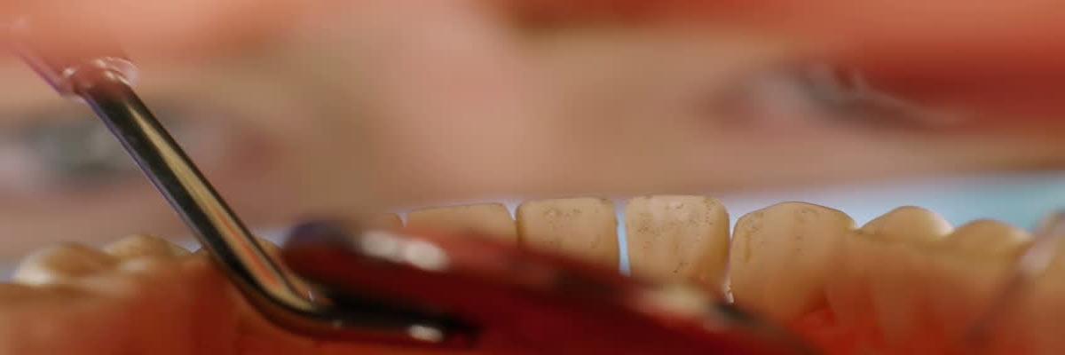 Problemen aan het gebit die veroorzaakt worden door tandsteen