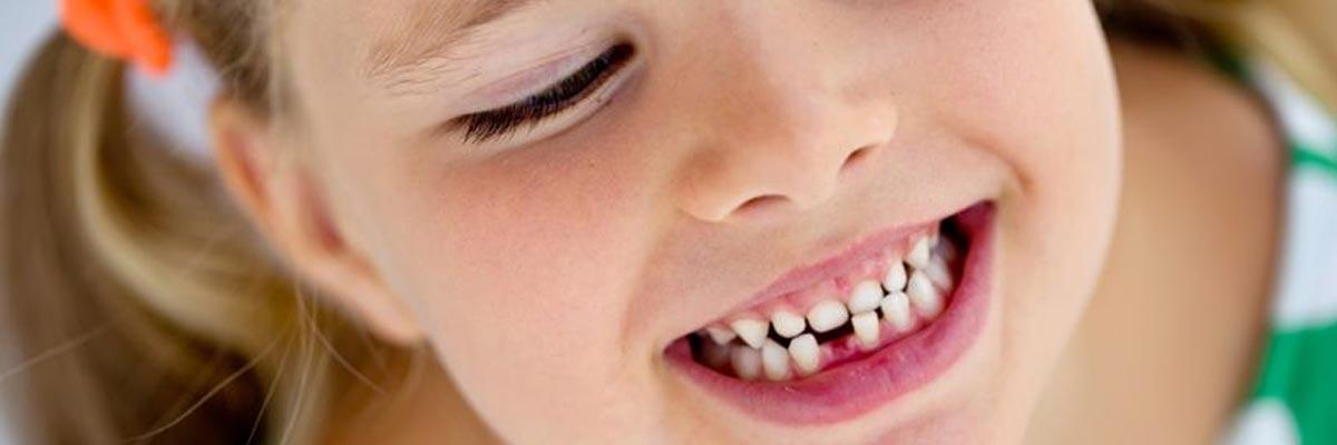 Tandendoosje kopen: bewaar de melktanden van je kind!